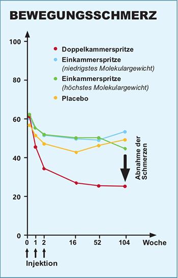 Grafik zu Bewegungsschmerzen